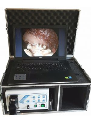 Ambulatory video endoscopy kit, video endoscope, veterinary endoscopy,